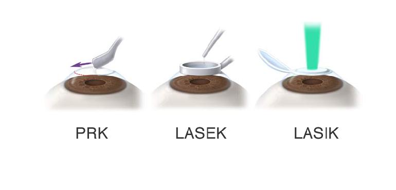 lasek-vs-lasik