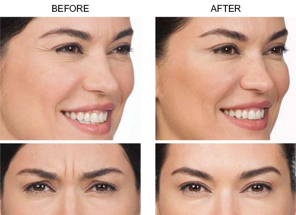 Botox-Allergan-Before-n-After-Cynthia