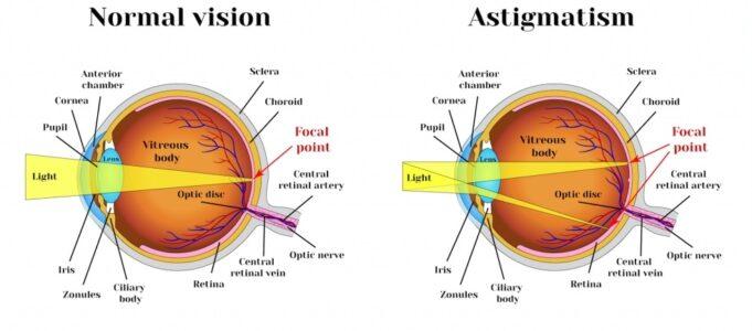 آستیگماتیسم-چشم-چیست-و-چه-علائم-و-درمانی-دارد